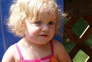 Hva er tegn og symptomer på matallergier hos småbarn?