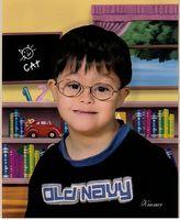 Hvordan å adoptere et barn med Down syndrom