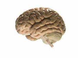 """Hvordan få raske Brains på """"Zombie Farm"""""""